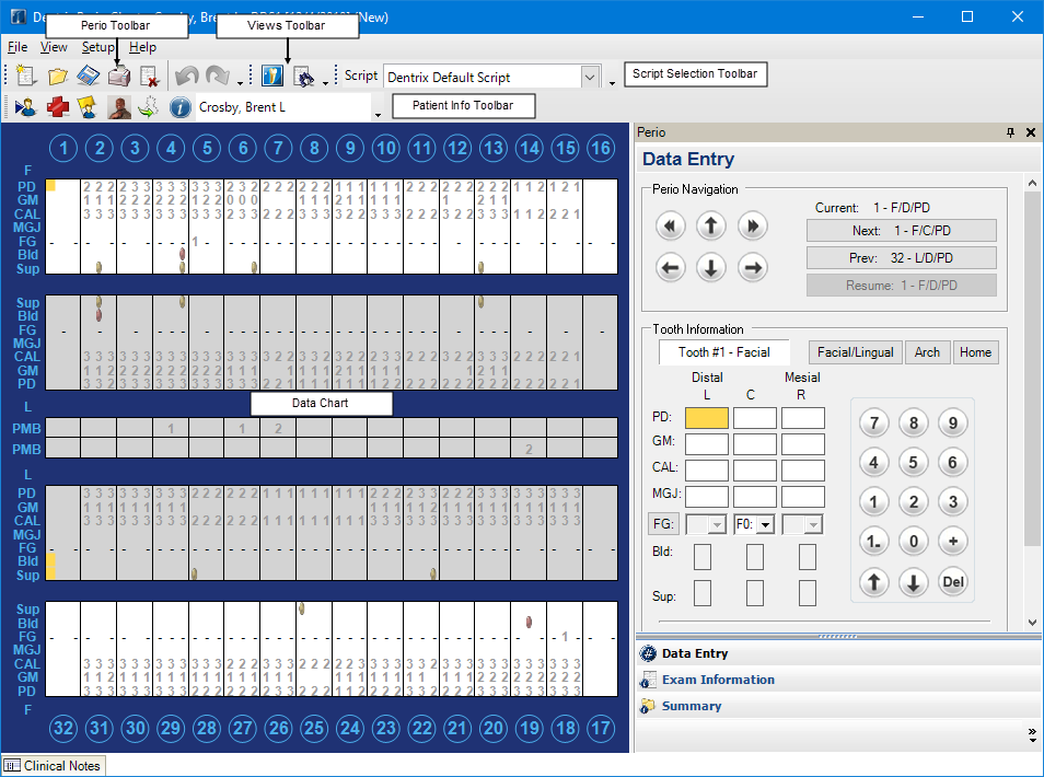 The Perio Chart Window Consists Of Four Sections Data Panel Toolbarenu Bar